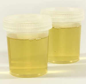 Urine Causes Yellow Semen
